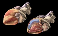Human Heart - Oblique views of normal human heart showing external anatomy and internal structures (ventricles, valves).