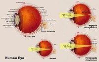 The diagram shows the internal structure of the human eye.