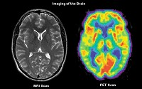 Imaging of the Brain.